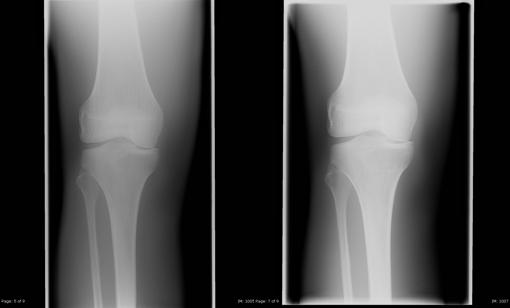 kolano z kratką przeciwrozproszeniową